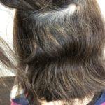 広がりやすい髪の毛は縮毛矯正で綺麗に
