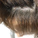 他で失敗した縮毛矯正を綺麗に直す